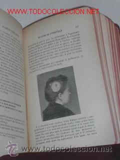 Libros antiguos: MANUEL DE PATHOLOGIE INTERNE, DE GEORGES DIEULAFOY - 1911 - Foto 7 - 237264585