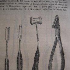 Libros antiguos: ELEMENTOS DE PATOLOGÍA QUIRURGICA/ A. NELATON/ CINCO TOMOS / 1876 . Lote 27051869