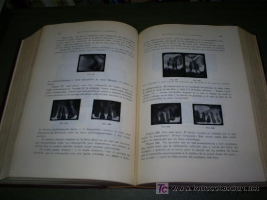 Libros antiguos: La Práctica Odontológica C. N. JOHNSON Labor 1930 RM44562 - Foto 2 - 25517080