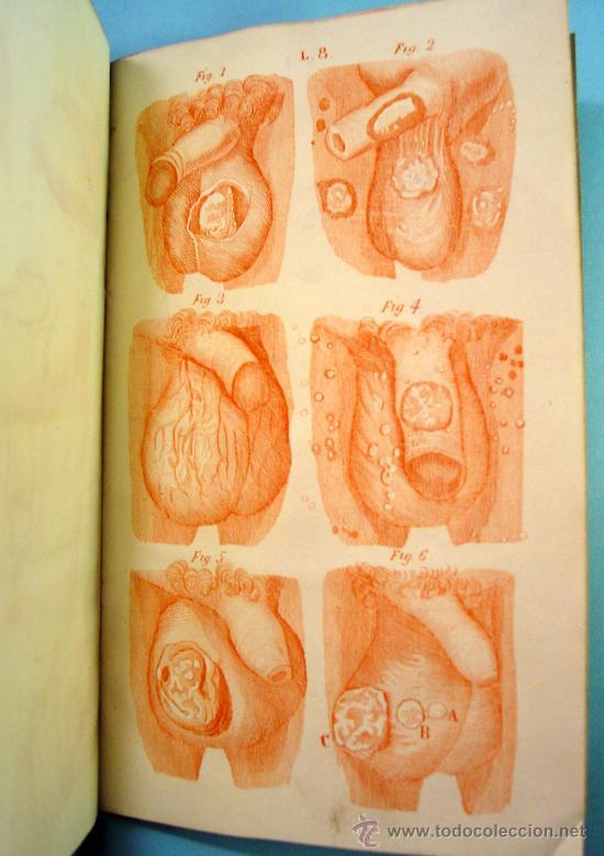 Libros antiguos: LA PRESERVACION PERSONAL O TRATADO MEDICO POPULAR SOBRE LAS ENFERMEDADES DE LA JUVEN..SAMUEL LAMERT - Foto 6 - 87924148