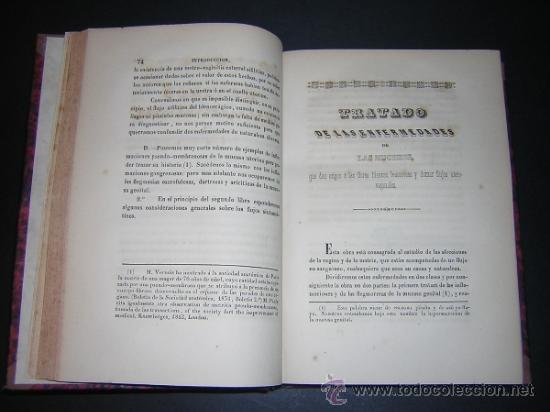 Libros antiguos: 1845 - BLATIN / VILLALBA - TRATADO DE LAS ENFERMEDADES DE LAS MUGERES - Foto 3 - 36366110