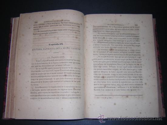 Libros antiguos: 1845 - BLATIN / VILLALBA - TRATADO DE LAS ENFERMEDADES DE LAS MUGERES - Foto 4 - 36366110