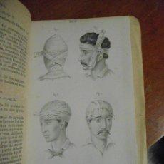 Libros antiguos: GOFFRES. MANUAL ICONOGRÁFICO DE VENDAJES, APÓSITOS Y APARATOS. 1875. Lote 41284878