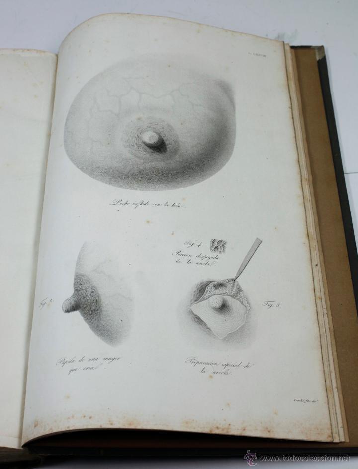 Libros antiguos: Nuevas demostraciones de los partos, con 80 estampas, J.L. Maygrier. París, Méjico, 1828. 27x41 cm. - Foto 6 - 41586318