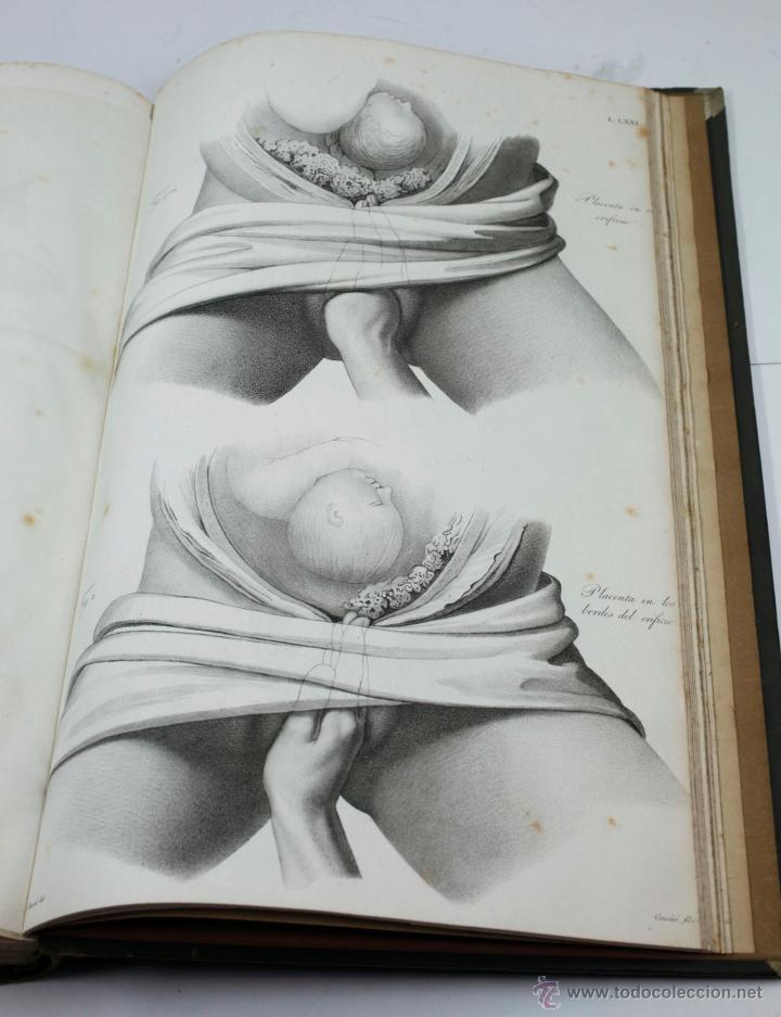 Libros antiguos: Nuevas demostraciones de los partos, con 80 estampas, J.L. Maygrier. París, Méjico, 1828. 27x41 cm. - Foto 7 - 41586318