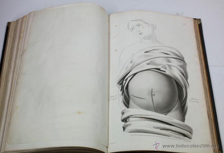 Libros antiguos: Nuevas demostraciones de los partos, con 80 estampas, J.L. Maygrier. París, Méjico, 1828. 27x41 cm. - Foto 8 - 41586318