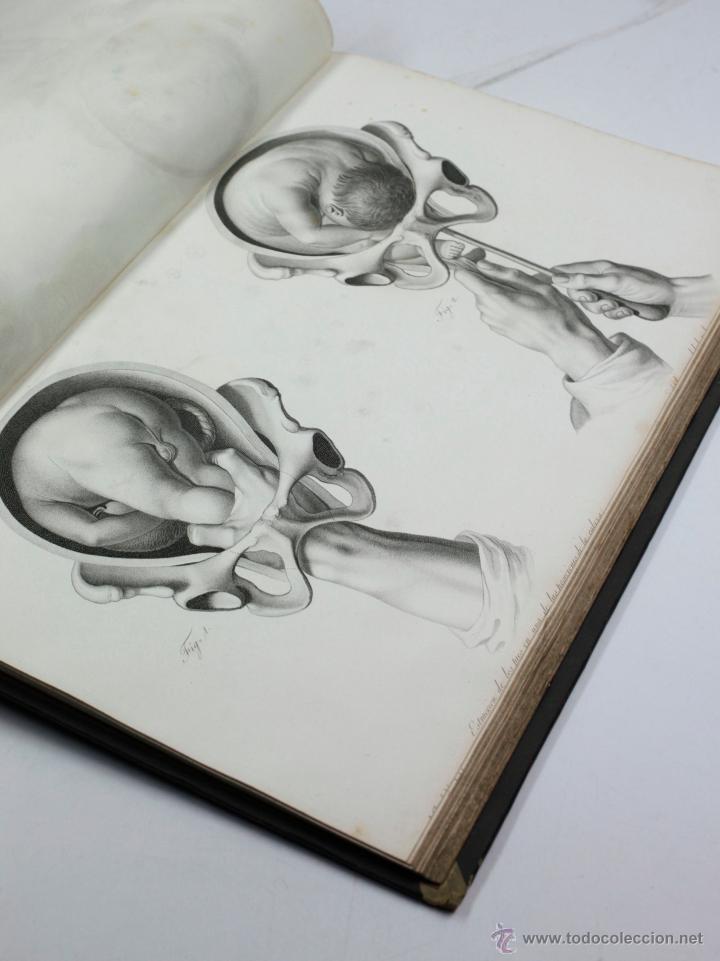 Libros antiguos: Nuevas demostraciones de los partos, con 80 estampas, J.L. Maygrier. París, Méjico, 1828. 27x41 cm. - Foto 9 - 41586318