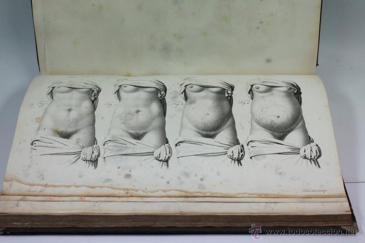 Libros antiguos: Nuevas demostraciones de los partos, con 80 estampas, J.L. Maygrier. París, Méjico, 1828. 27x41 cm. - Foto 12 - 41586318