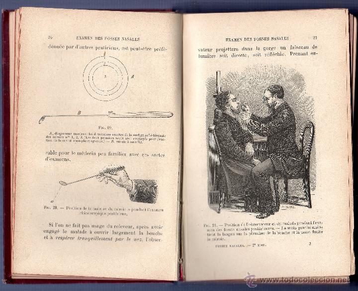 Libros antiguos: MANUEL PRATIQUE DES MALADIES DES FOSSES NASALES DE LA CAVITÉ NASO-PHARYNGIENNE. LE Dr E. J. MOURE. - Foto 3 - 42473207
