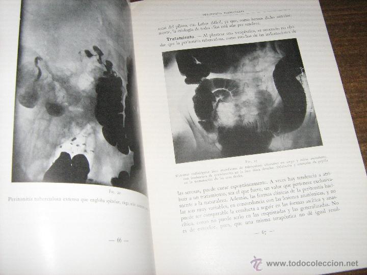 Libros antiguos: OCHO LECCIONES CLINICAS - GALLART MONÉS - SALVAT EDITORES 1936 - HOSPITAL SANTA CRUZ Y SAN PABLO - Foto 2 - 42974083