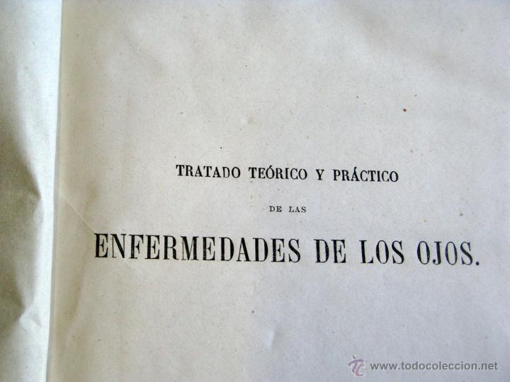 TRATADO PRACTICO ENFERMEDADES DE LOS OJOS 1871 (Libros Antiguos, Raros y Curiosos - Ciencias, Manuales y Oficios - Medicina, Farmacia y Salud)