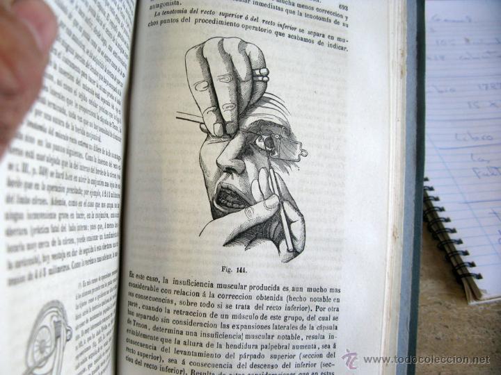Libros antiguos: TRATADO PRACTICO ENFERMEDADES DE LOS OJOS 1871 - Foto 5 - 45967113