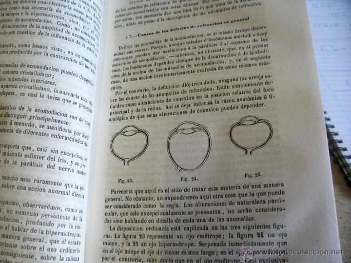 Libros antiguos: TRATADO PRACTICO ENFERMEDADES DE LOS OJOS 1871 - Foto 6 - 45967113