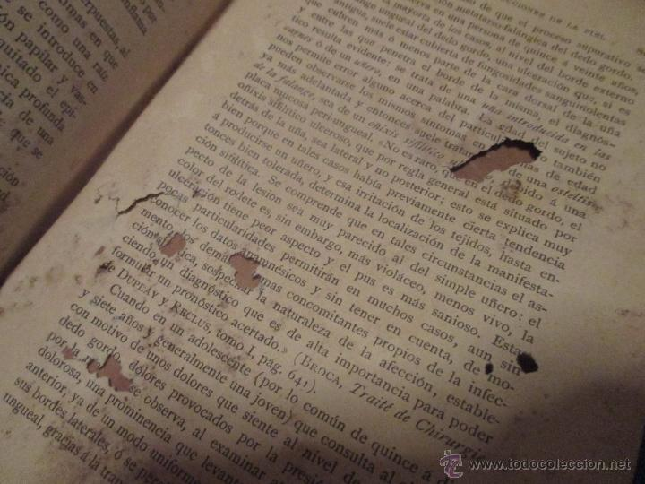 Libros antiguos: 'MANUAL DE DIAGNÓSTICO QUIRÚRJICO' S. DUPLAN. E. ROCHARD Y E. DEMOULIN. ED 1895. ESPASA. - Foto 3 - 45996442