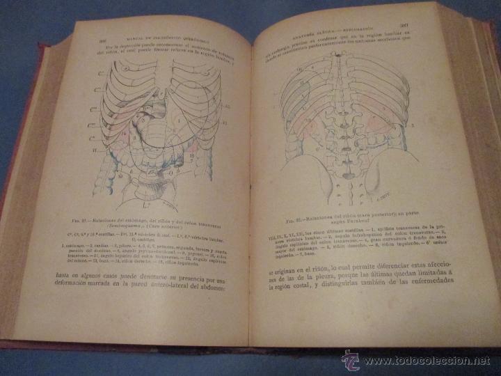 Libros antiguos: 'MANUAL DE DIAGNÓSTICO QUIRÚRJICO' S. DUPLAN. E. ROCHARD Y E. DEMOULIN. ED 1895. ESPASA. - Foto 4 - 45996442