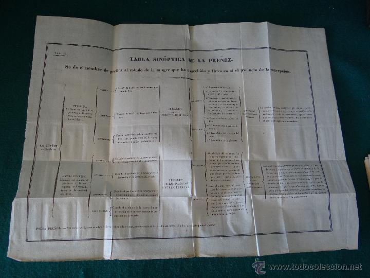 Libros antiguos: CURSO COMPLETO DE PARTOS POR JULIO HATIN . MADRID 1.835 (1ª EDICION) TOMO 1ºy2º. LITOGRAFIAS - Foto 12 - 49416557