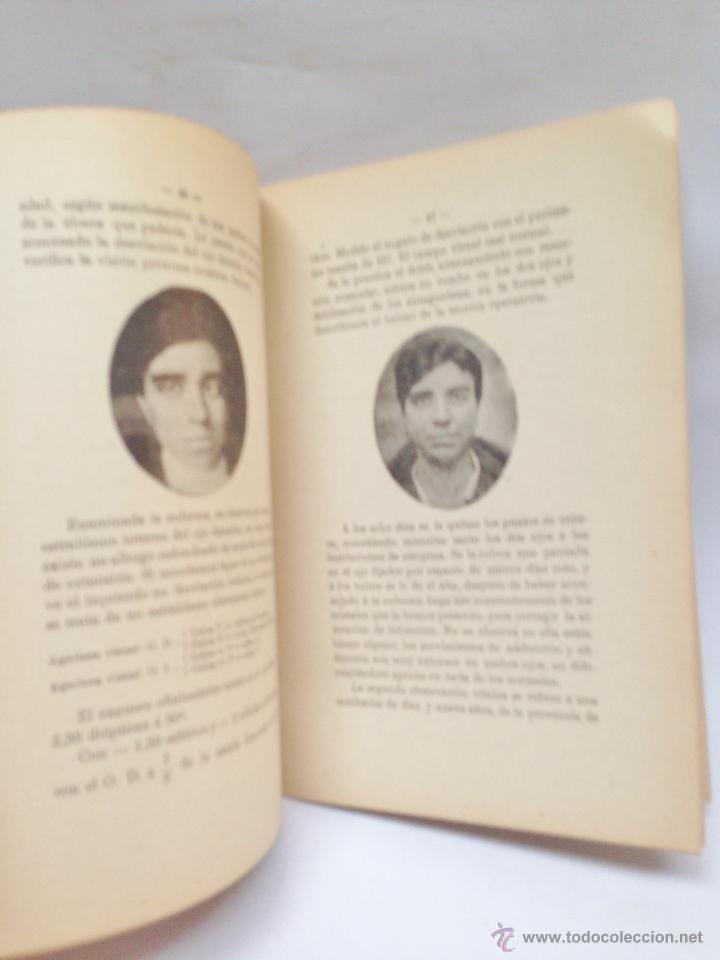 Libros antiguos: NUEVO TRATAMIENTO QUIRURGICO DEL ESTRABISMO ·· DR. B. CASTRESANA ·· 1919 ·· - Foto 3 - 50425019