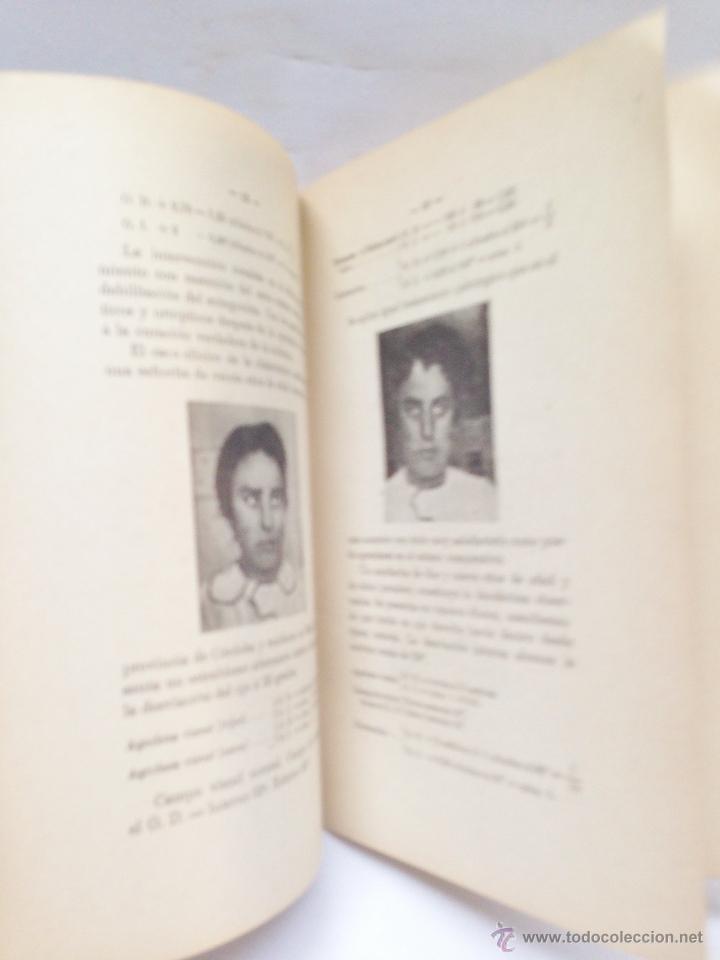 Libros antiguos: NUEVO TRATAMIENTO QUIRURGICO DEL ESTRABISMO ·· DR. B. CASTRESANA ·· 1919 ·· - Foto 4 - 50425019