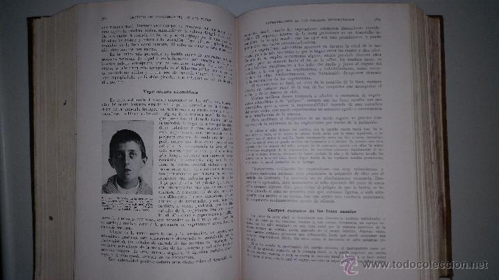Libros antiguos: TRATADO DE ENFERMEDADES DE LOS NIÑOS - Dr. EMILIO FEER - Barcelona - MANUEL MARIN - 1922 - Foto 4 - 51148541