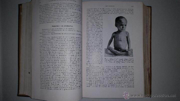 Libros antiguos: TRATADO DE ENFERMEDADES DE LOS NIÑOS - Dr. EMILIO FEER - Barcelona - MANUEL MARIN - 1922 - Foto 5 - 51148541