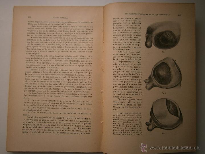 Libros antiguos: Recientes innovaciones en terapeutica experimental suero y quimioterapia Wolff Eisner 1932 - Foto 11 - 52828388