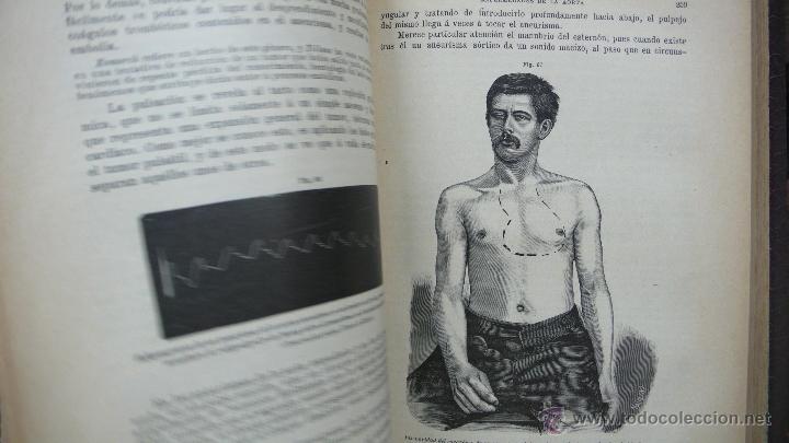 Libros antiguos: TRATADO DE PATOLOGÍA INTERNA Y TERAPÉUTICA. HERMANN EICHHORST. 3 VOL. 1894 - Foto 4 - 53319978