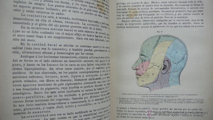 Libros antiguos: TRATADO DE PATOLOGÍA INTERNA Y TERAPÉUTICA. HERMANN EICHHORST. 3 VOL. 1894 - Foto 7 - 53319978