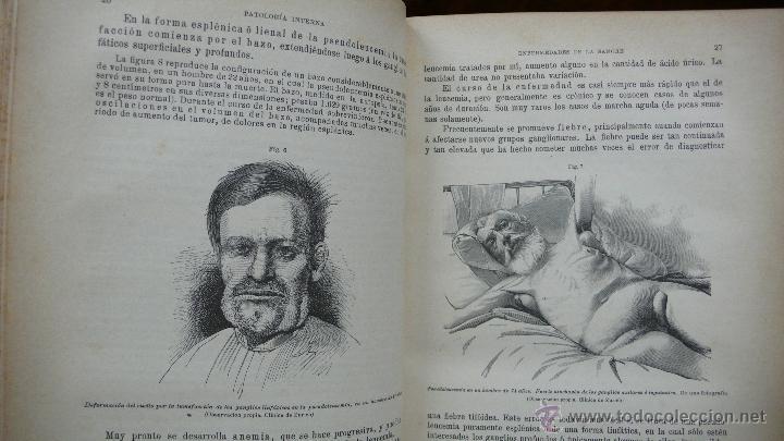 Libros antiguos: TRATADO DE PATOLOGÍA INTERNA Y TERAPÉUTICA. HERMANN EICHHORST. 3 VOL. 1894 - Foto 10 - 53319978