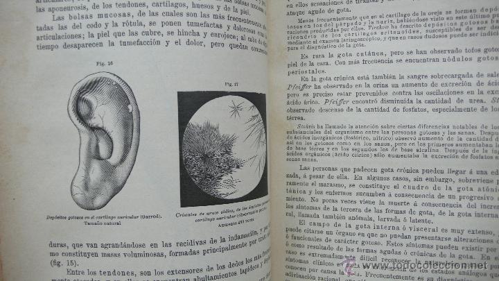 Libros antiguos: TRATADO DE PATOLOGÍA INTERNA Y TERAPÉUTICA. HERMANN EICHHORST. 3 VOL. 1894 - Foto 11 - 53319978