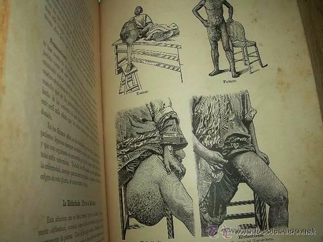Libros antiguos: EL MEDICO PRACTICO Y DOMESTICO ENCICLOPEDIA DE MEDICINA,ENFERMEDADES DE LOS TROPICOS- AÑO 1.892 - Foto 8 - 53698021