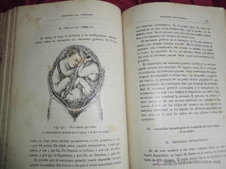 Libros antiguos: magnifico libro antiguo manual de practico de partos del 1904 - Foto 3 - 53838929