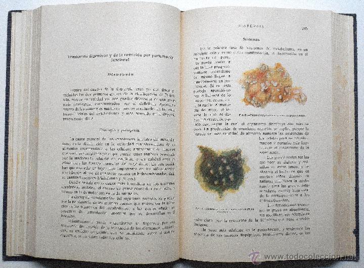 Libros antiguos: ENFERMEDADES DE LA INFANCIA - DR. ENRIQUE SUÑER - TRES TOMOS COMPLETA - EDITA CALPE AÑO 1921 - Foto 5 - 54088493