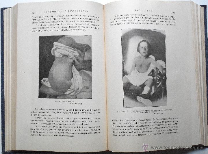 Libros antiguos: ENFERMEDADES DE LA INFANCIA - DR. ENRIQUE SUÑER - TRES TOMOS COMPLETA - EDITA CALPE AÑO 1921 - Foto 8 - 54088493