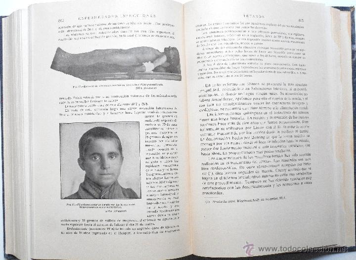 Libros antiguos: ENFERMEDADES DE LA INFANCIA - DR. ENRIQUE SUÑER - TRES TOMOS COMPLETA - EDITA CALPE AÑO 1921 - Foto 10 - 54088493