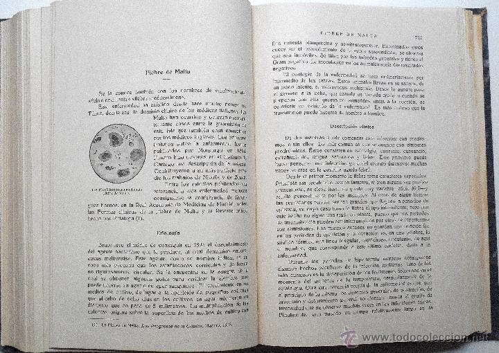Libros antiguos: ENFERMEDADES DE LA INFANCIA - DR. ENRIQUE SUÑER - TRES TOMOS COMPLETA - EDITA CALPE AÑO 1921 - Foto 11 - 54088493