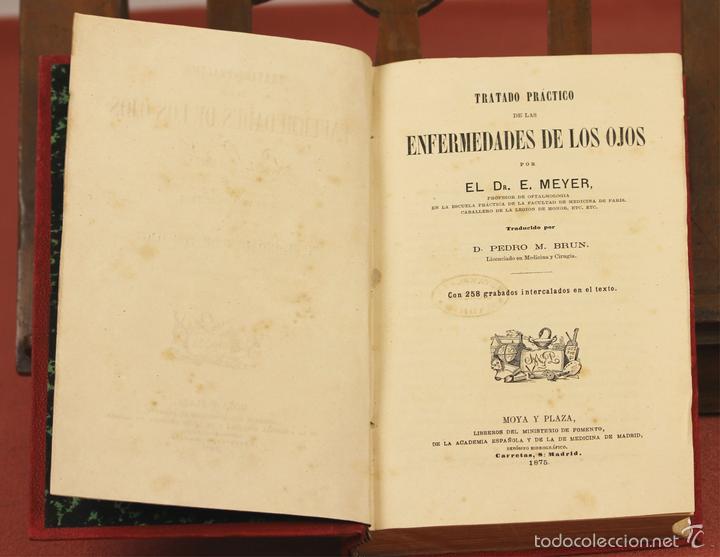 7920 - TRATADO PRÁCTICO DE LAS ENFERMEDADES DE LOS OJOS. MEYER. EDI. MOYA Y PLAZA. 1875. (Libros Antiguos, Raros y Curiosos - Ciencias, Manuales y Oficios - Medicina, Farmacia y Salud)