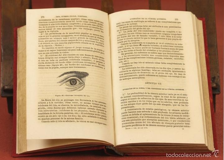 Libros antiguos: 7920 - TRATADO PRÁCTICO DE LAS ENFERMEDADES DE LOS OJOS. MEYER. EDI. MOYA Y PLAZA. 1875. - Foto 3 - 59974927