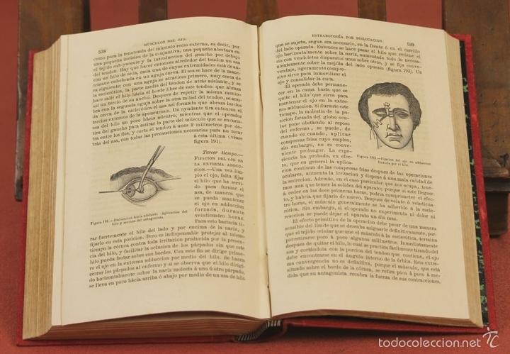 Libros antiguos: 7920 - TRATADO PRÁCTICO DE LAS ENFERMEDADES DE LOS OJOS. MEYER. EDI. MOYA Y PLAZA. 1875. - Foto 4 - 59974927