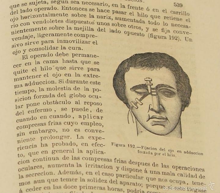 Libros antiguos: 7920 - TRATADO PRÁCTICO DE LAS ENFERMEDADES DE LOS OJOS. MEYER. EDI. MOYA Y PLAZA. 1875. - Foto 5 - 59974927