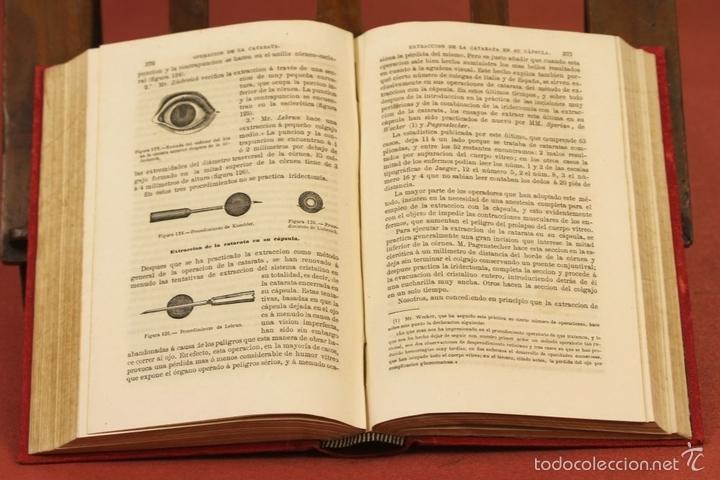 Libros antiguos: 7920 - TRATADO PRÁCTICO DE LAS ENFERMEDADES DE LOS OJOS. MEYER. EDI. MOYA Y PLAZA. 1875. - Foto 6 - 59974927