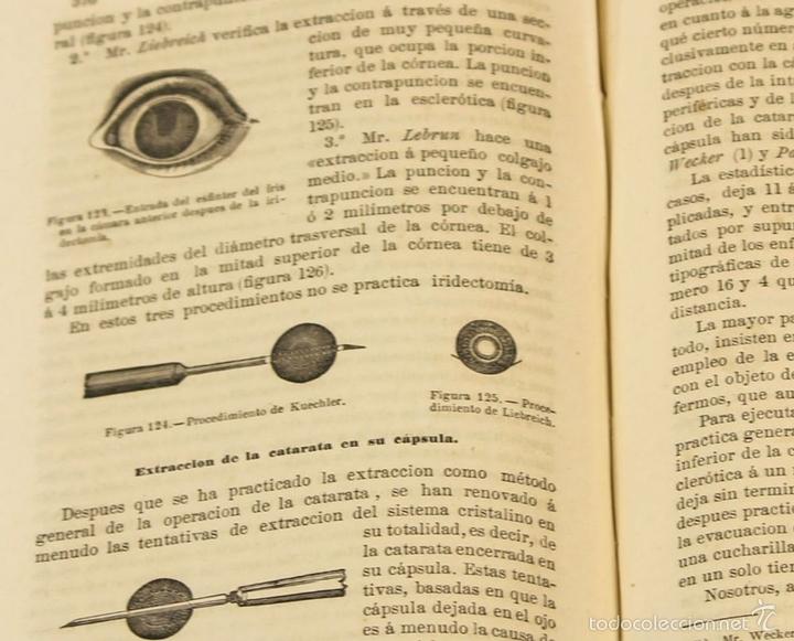 Libros antiguos: 7920 - TRATADO PRÁCTICO DE LAS ENFERMEDADES DE LOS OJOS. MEYER. EDI. MOYA Y PLAZA. 1875. - Foto 7 - 59974927