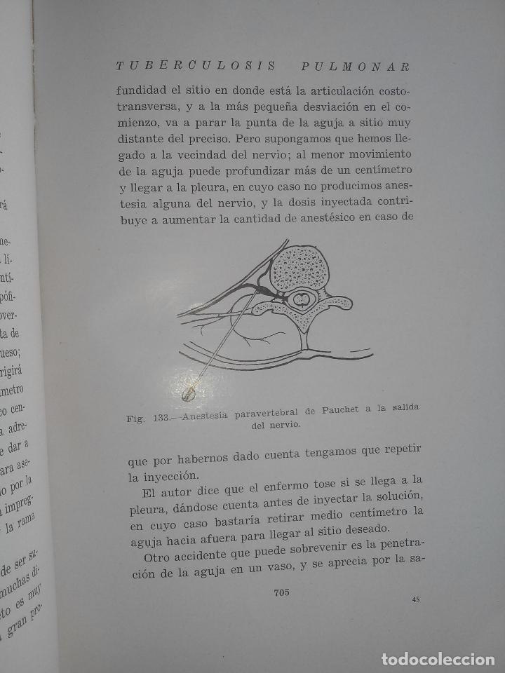 Libros antiguos: Tuberculosis pulmonar - Emiliano Eizaguirre - San Sebastián. 1931. - Foto 4 - 87018890