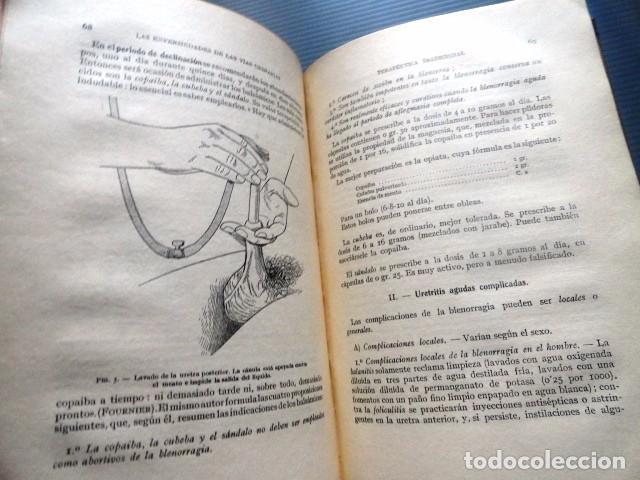 Libros antiguos: LIBRO LAS ENFERMEDADES DE LAS VIAS URINARIAS (MEDICINA, FARMACIA) - Foto 7 - 87651324