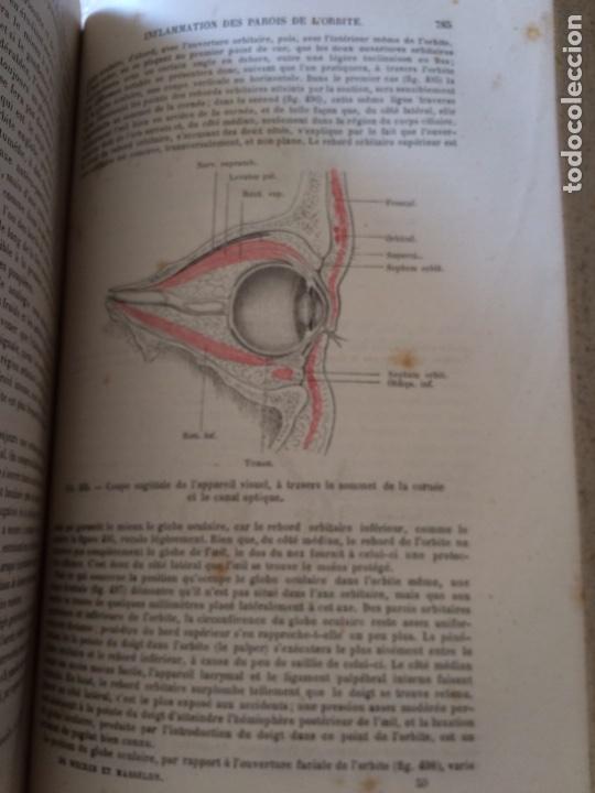 Libros antiguos: Manuel.Dophthaologie.Wecwer et Masselon (1889) - Foto 9 - 90819052