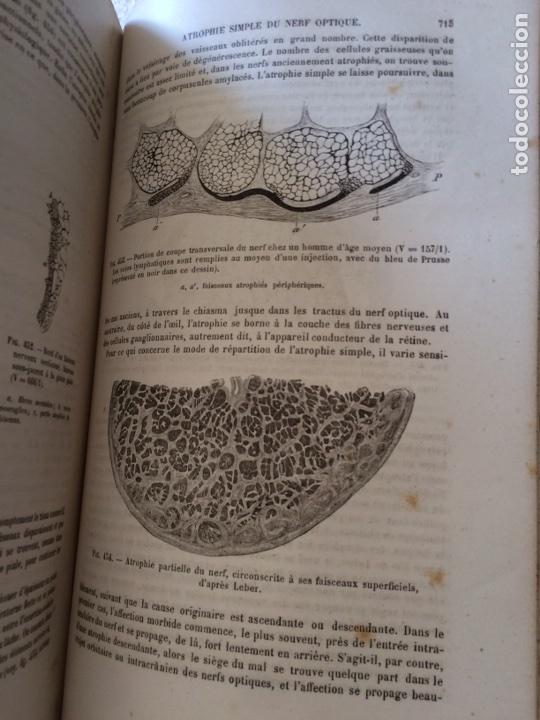 Libros antiguos: Manuel.Dophthaologie.Wecwer et Masselon (1889) - Foto 12 - 90819052