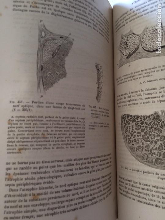 Libros antiguos: Manuel.Dophthaologie.Wecwer et Masselon (1889) - Foto 13 - 90819052