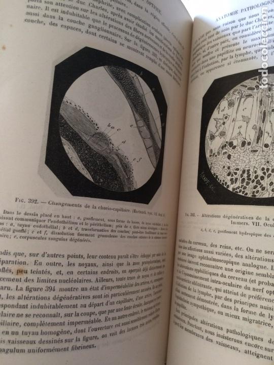 Libros antiguos: Manuel.Dophthaologie.Wecwer et Masselon (1889) - Foto 15 - 90819052