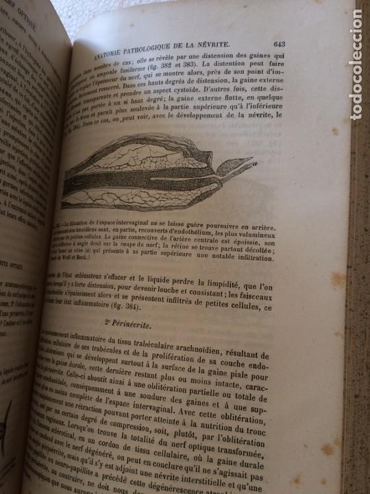 Libros antiguos: Manuel.Dophthaologie.Wecwer et Masselon (1889) - Foto 16 - 90819052