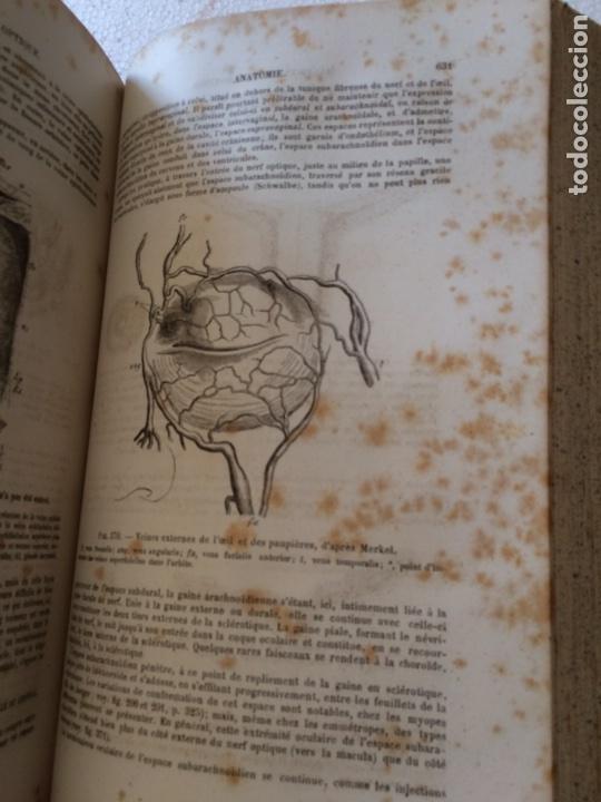 Libros antiguos: Manuel.Dophthaologie.Wecwer et Masselon (1889) - Foto 17 - 90819052