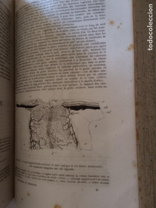 Libros antiguos: Manuel.Dophthaologie.Wecwer et Masselon (1889) - Foto 19 - 90819052